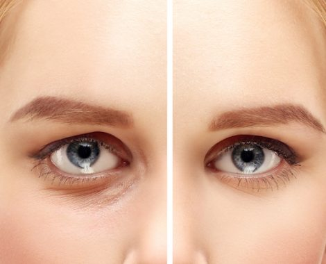 Lower-Eyelid Blepharoplasty.Asian Eyelid Surgery.Upper blepharoplasty.Correcting  the aging process